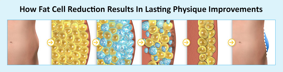 Fat Cell Killer: How to Remove Fat Cells From Your Stubborn